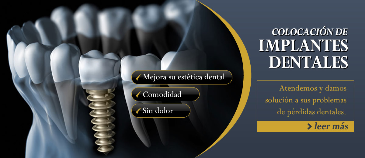 Implantes dentales en Reynosa